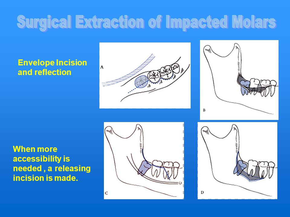 Surgical Extraction of Impacted Molars