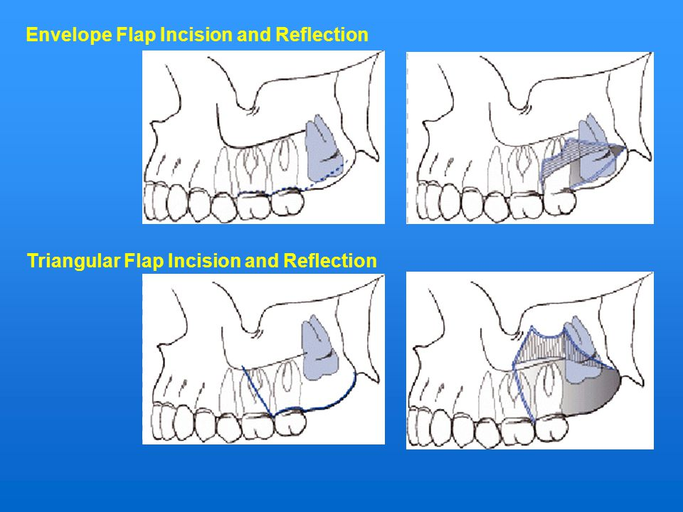Envelope Flap Incision and Reflection
