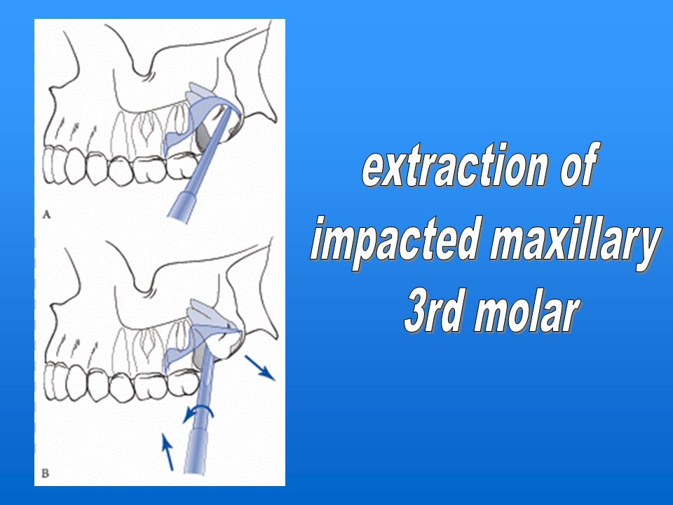 extraction of impacted maxillary 3rd molar