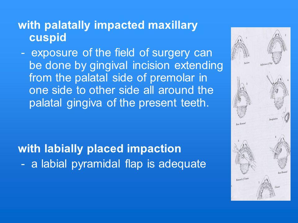with palatally impacted maxillary cuspid