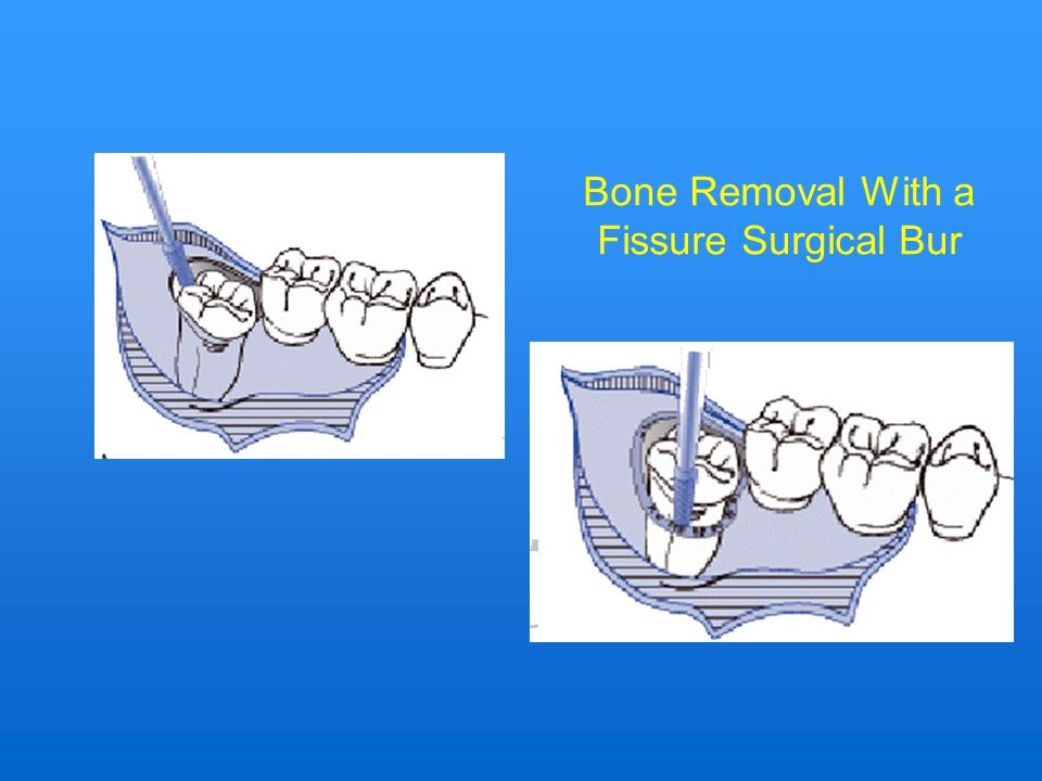 Bone Removal With a Fissure Surgical Bur