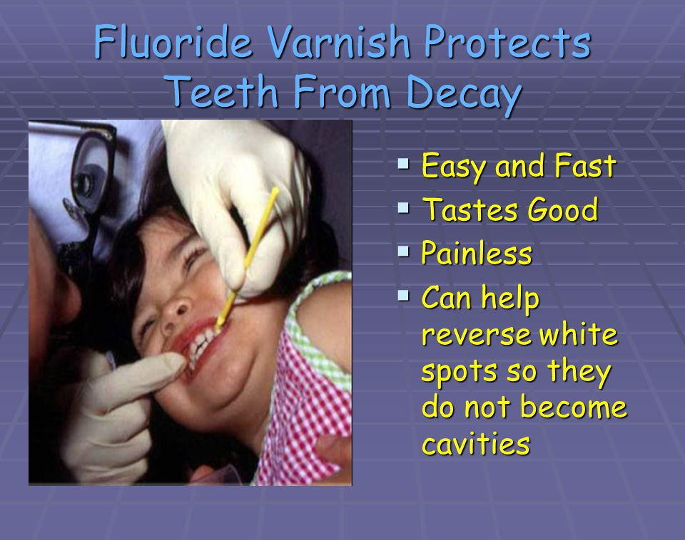 Fluoride Varnish Protects Teeth From Decay