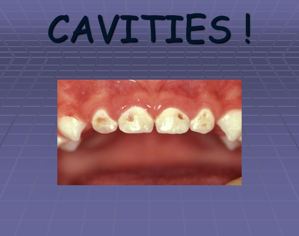 CAVITIES .