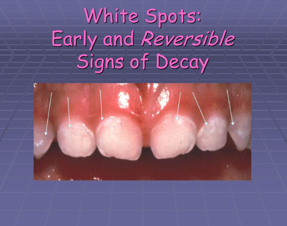 White Spots: Early and Reversible Signs of Decay