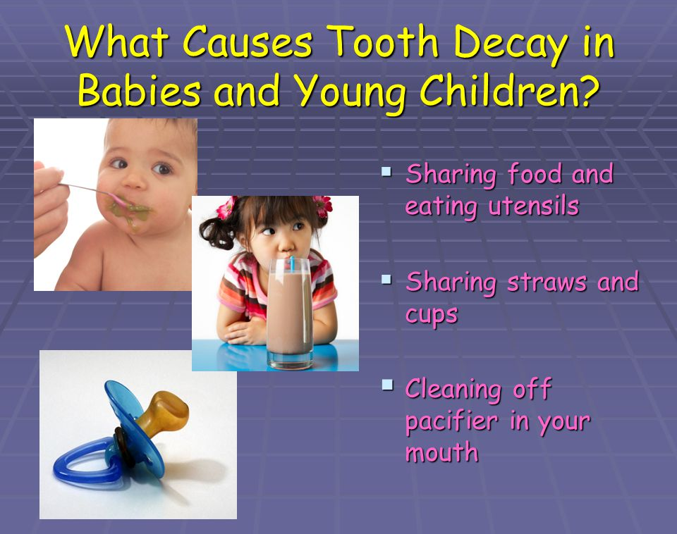 What Causes Tooth Decay in Babies and Young Children