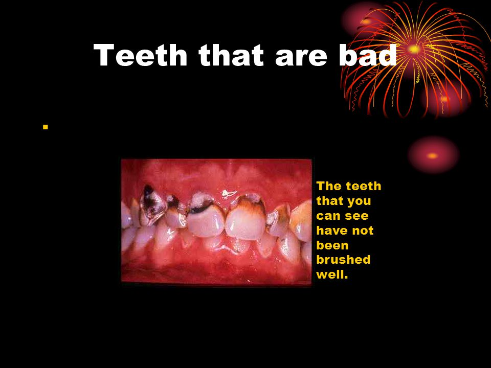Teeth that are bad . The teeth that you can see have not been brushed well.