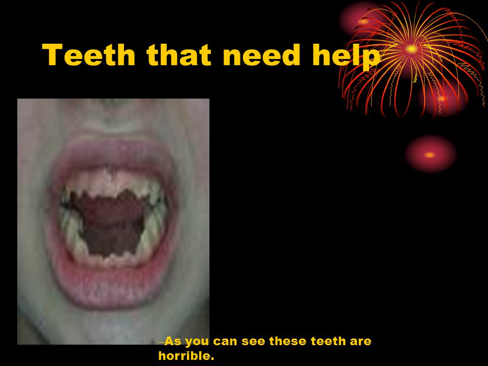 Teeth that need help As you can see these teeth are horrible.