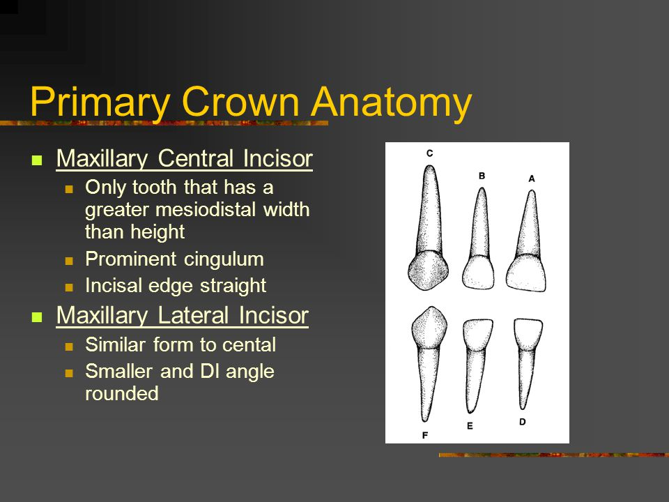 Primary Crown Anatomy Maxillary Central Incisor