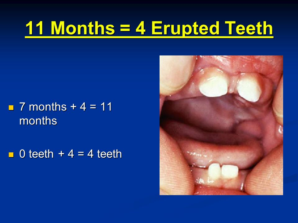 11 Months = 4 Erupted Teeth 7 months + 4 = 11 months