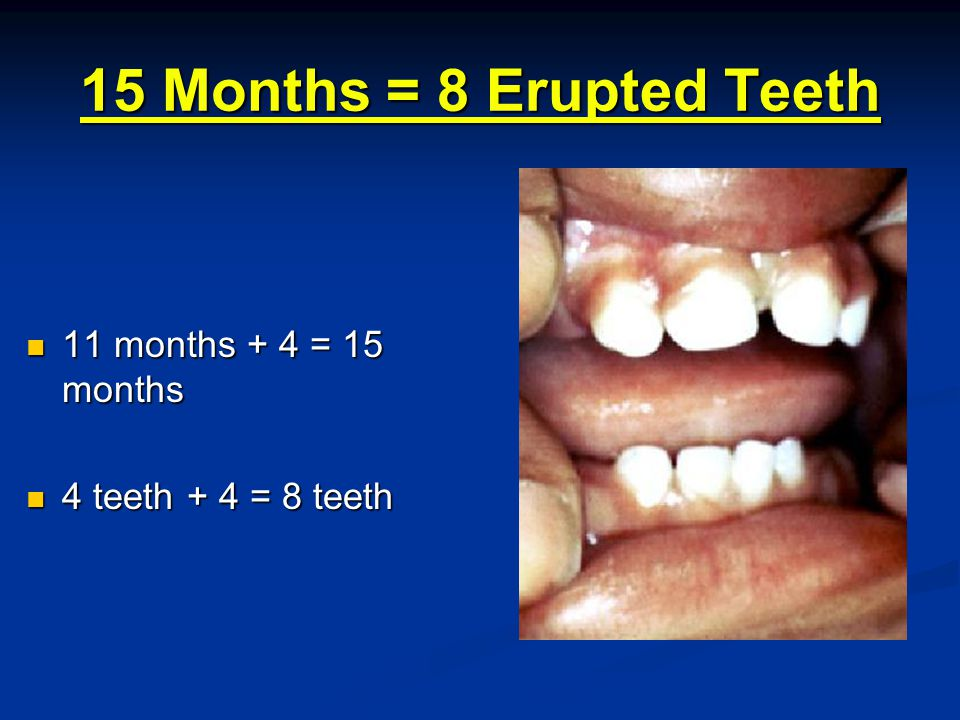 15 Months = 8 Erupted Teeth 11 months + 4 = 15 months