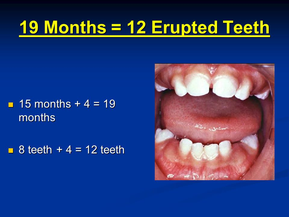 19 Months = 12 Erupted Teeth 15 months + 4 = 19 months