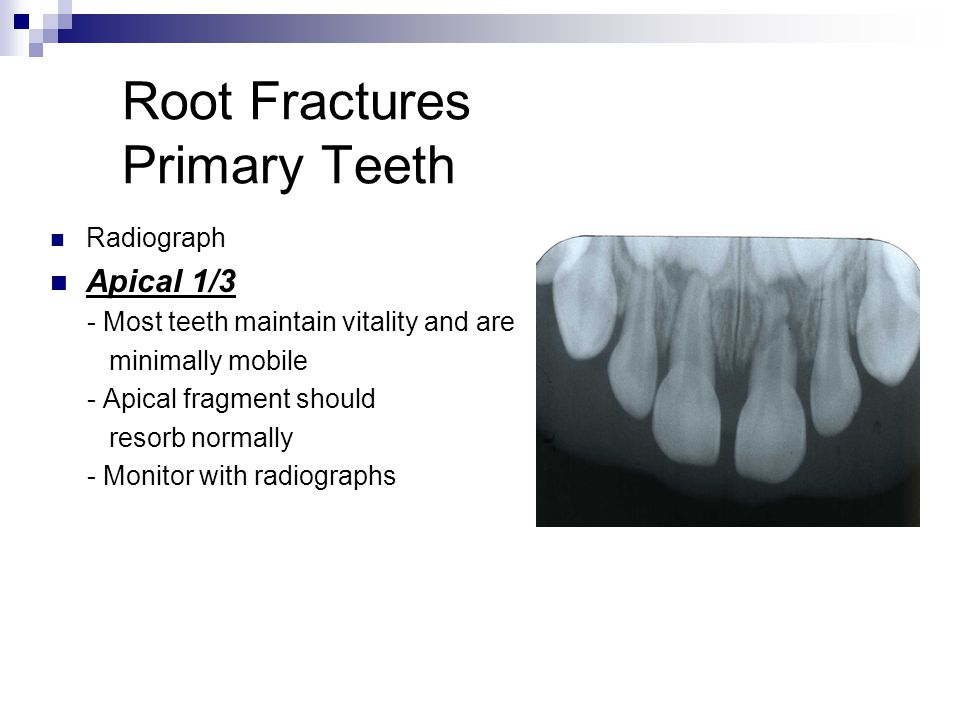 Root Fractures Primary Teeth