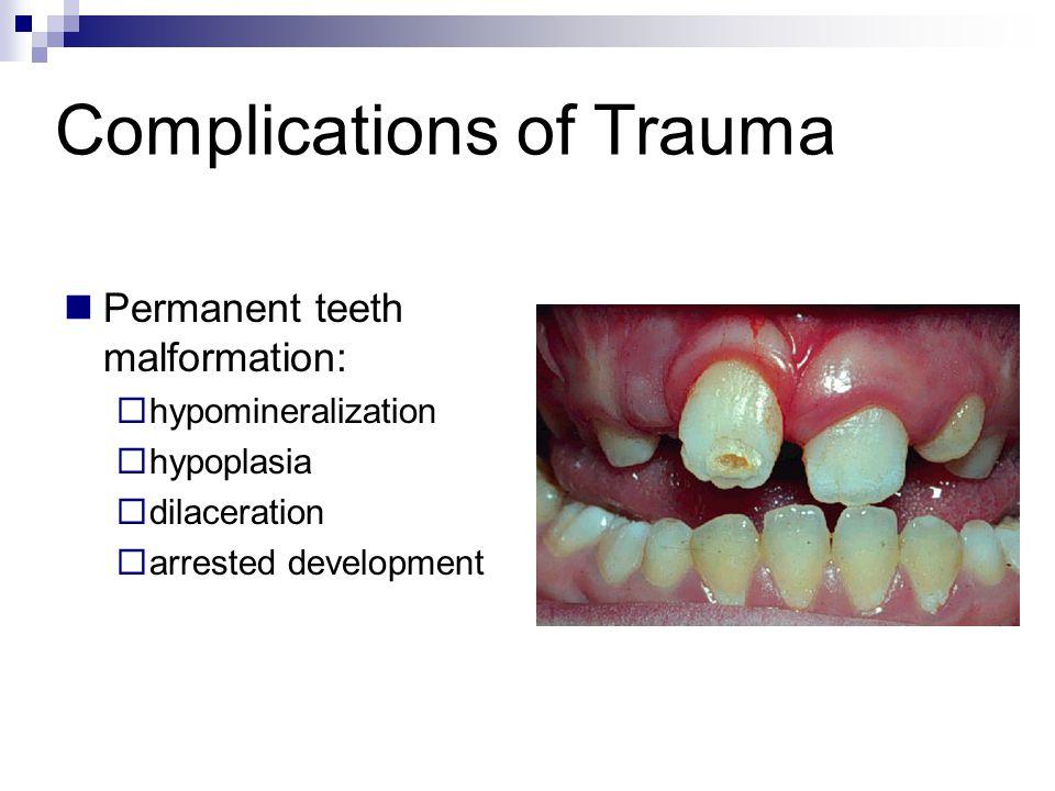 Complications of Trauma