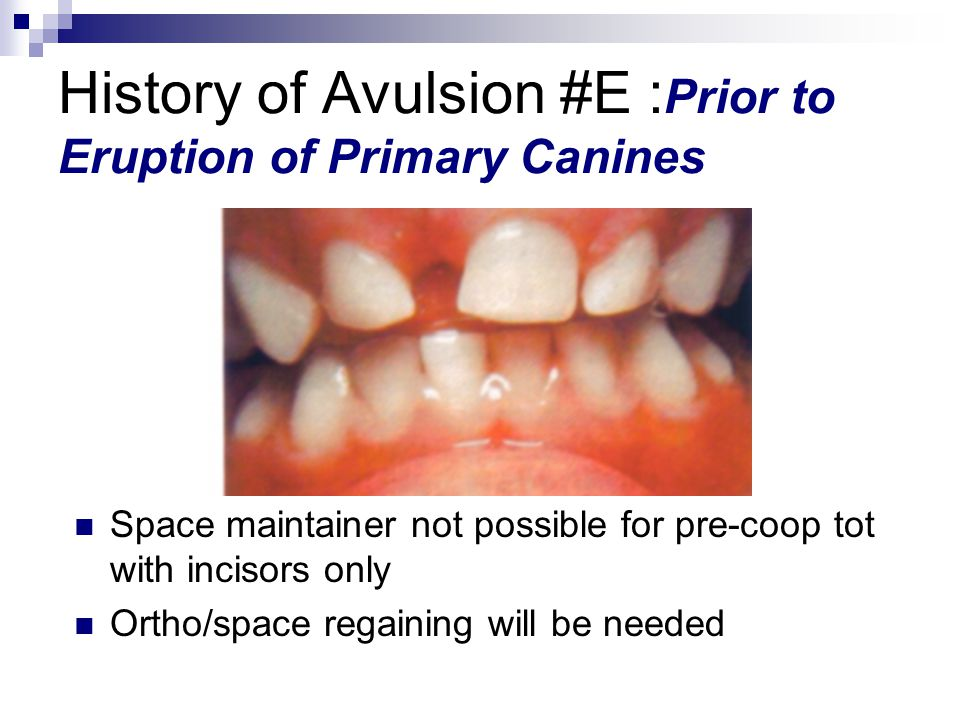 History of Avulsion #E :Prior to Eruption of Primary Canines