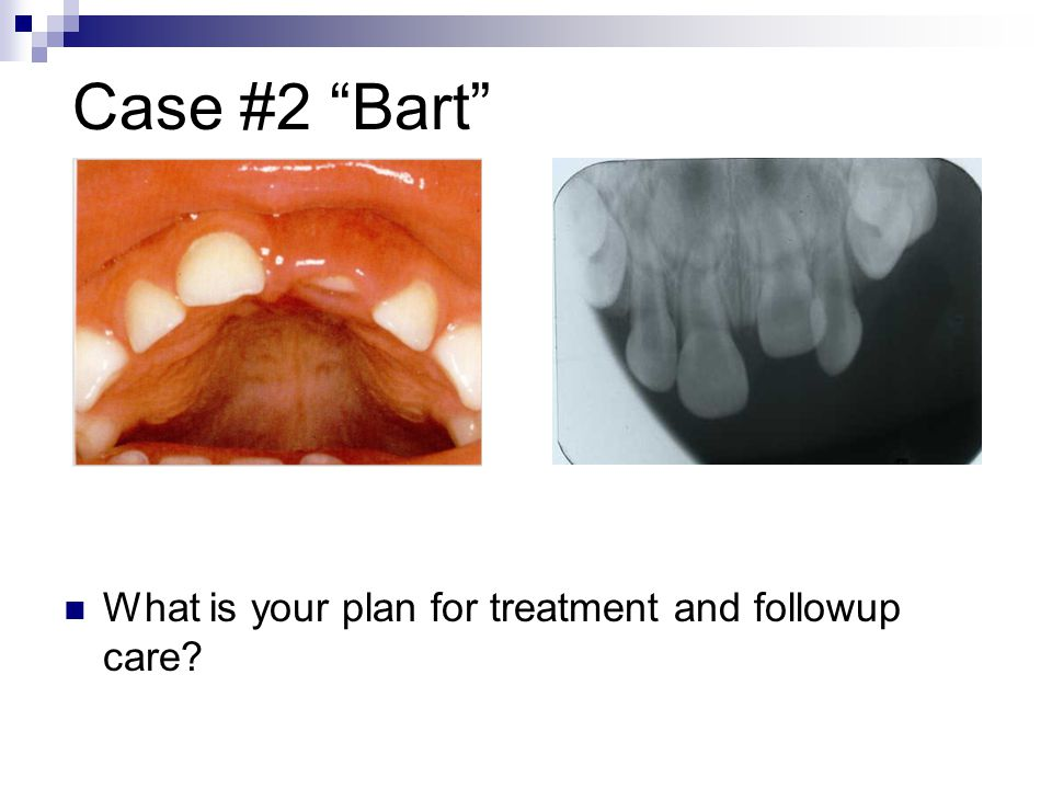 Case #2 Bart What is your plan for treatment and followup care