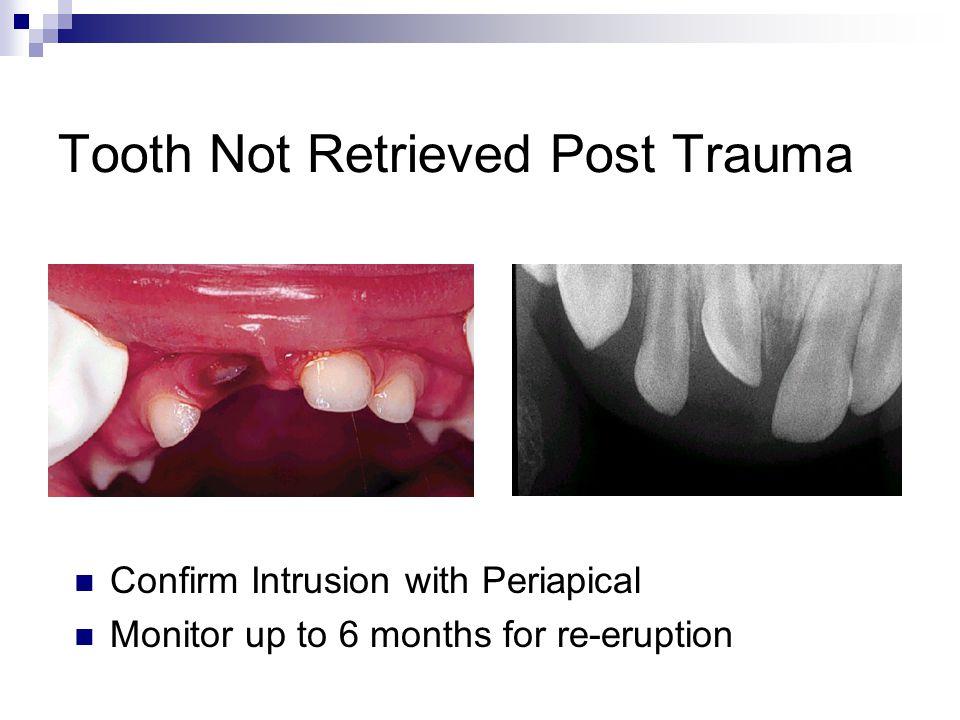 Tooth Not Retrieved Post Trauma