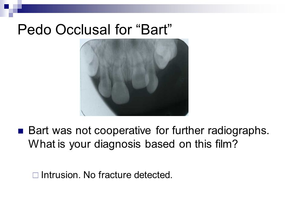 Pedo Occlusal for Bart