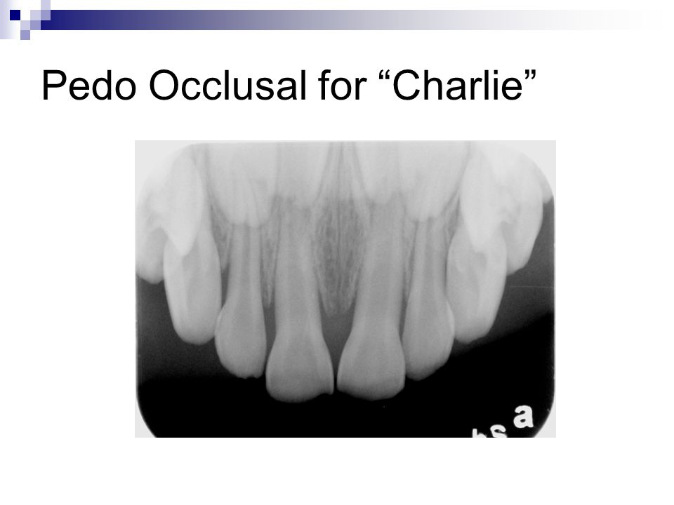 Pedo Occlusal for Charlie
