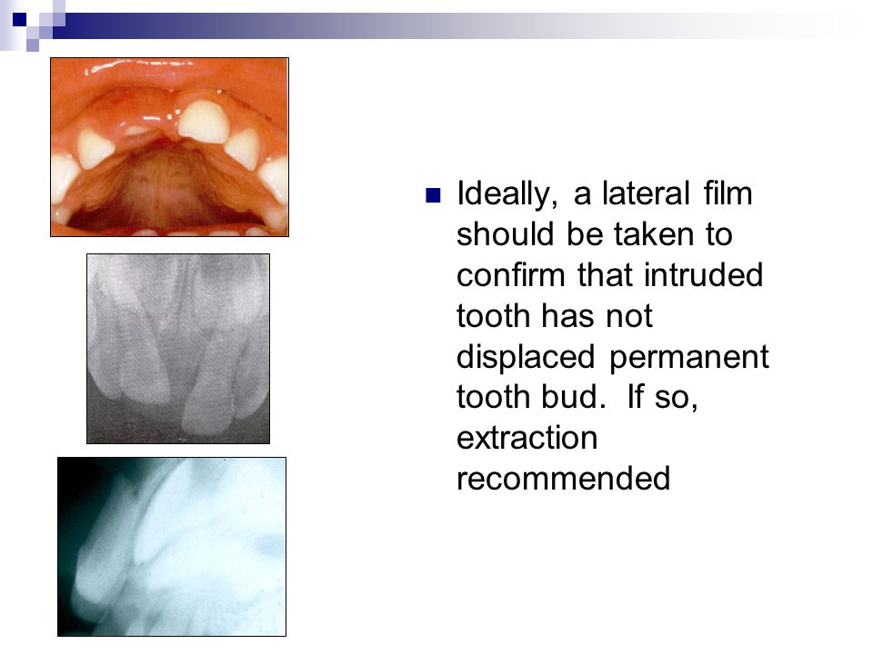 Ideally, a lateral film should be taken to confirm that intruded tooth has not displaced permanent tooth bud.