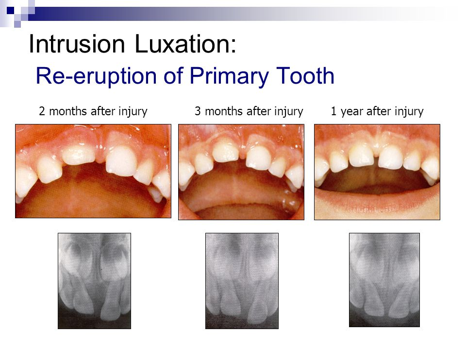 Intrusion Luxation: Re-eruption of Primary Tooth