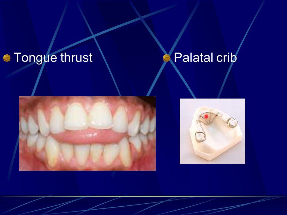 Tongue thrust Palatal crib