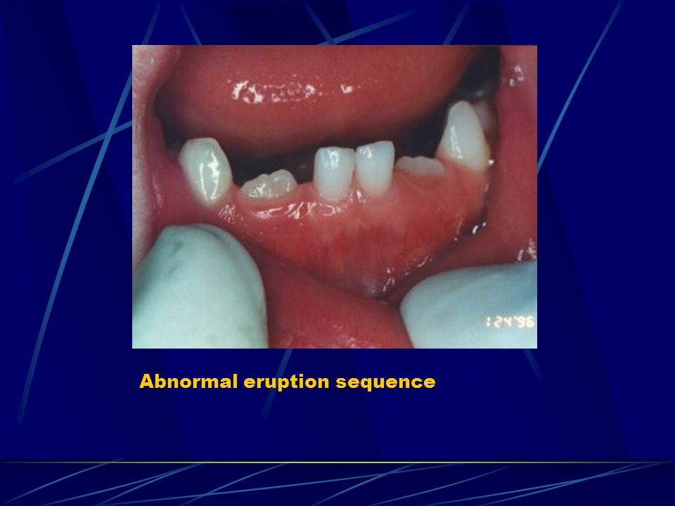 Abnormal eruption sequence