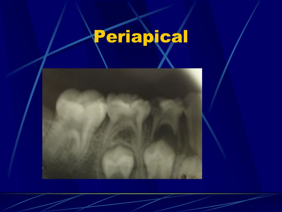 Periapical Infection and extraction