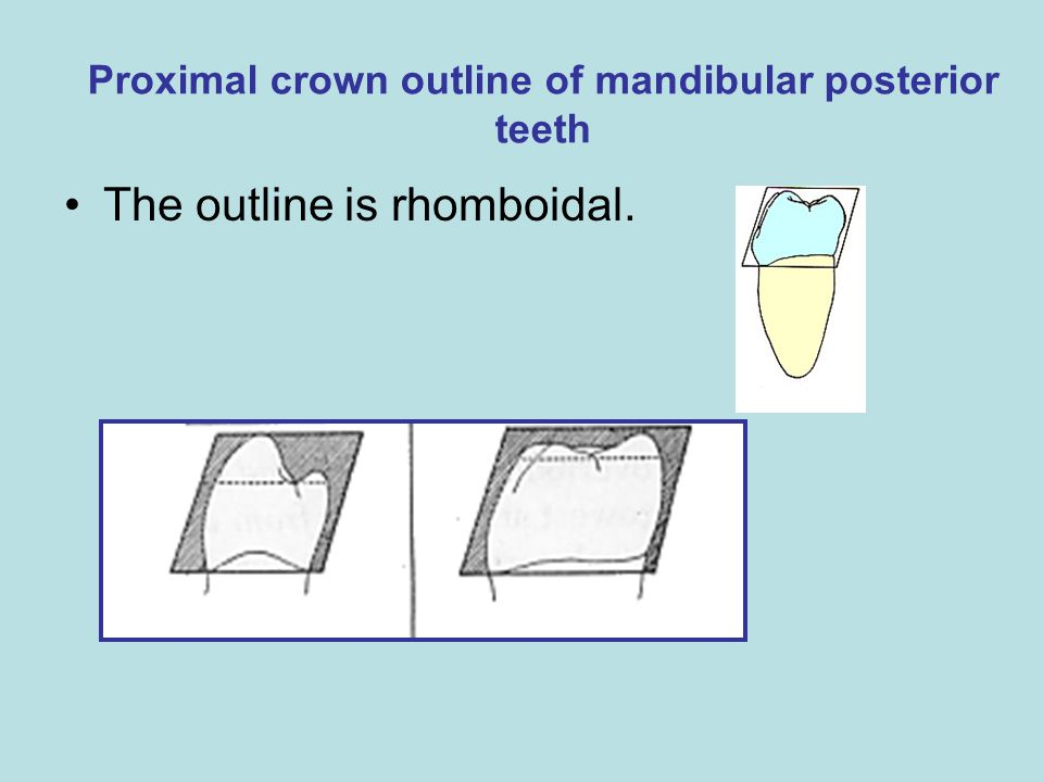 Proximal crown outline of mandibular posterior teeth