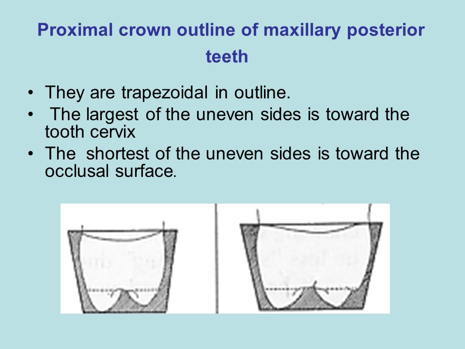 Proximal crown outline of maxillary posterior teeth