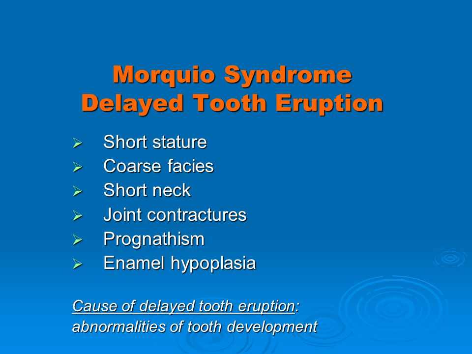 Morquio Syndrome Delayed Tooth Eruption