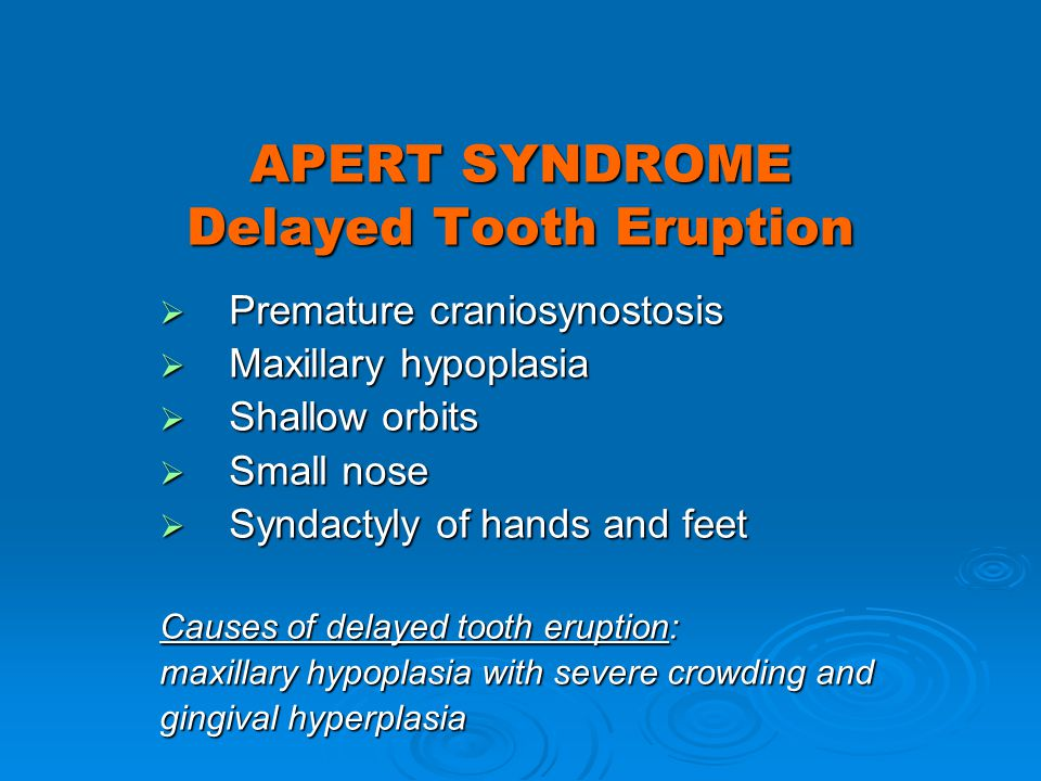 APERT SYNDROME Delayed Tooth Eruption
