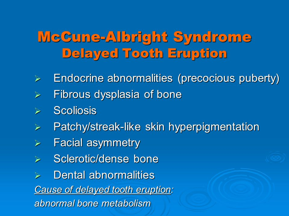 McCune-Albright Syndrome Delayed Tooth Eruption