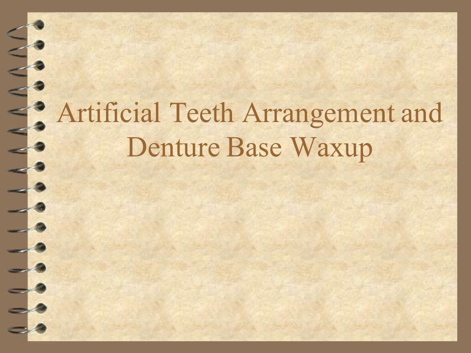 Artificial Teeth Arrangement and Denture Base Waxup