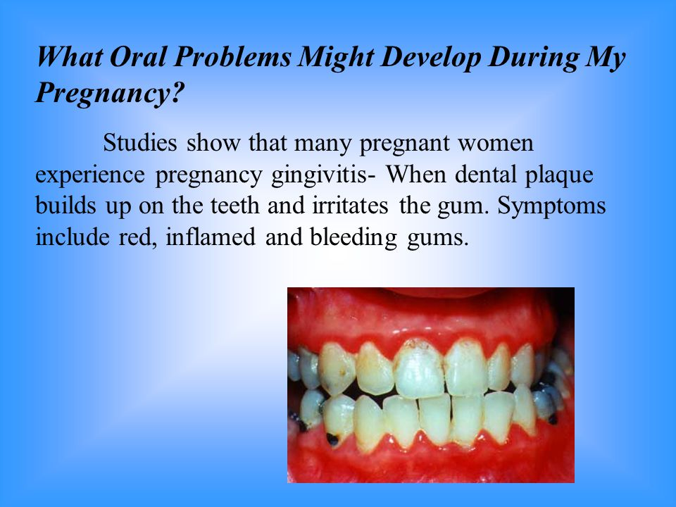 What Oral Problems Might Develop During My Pregnancy
