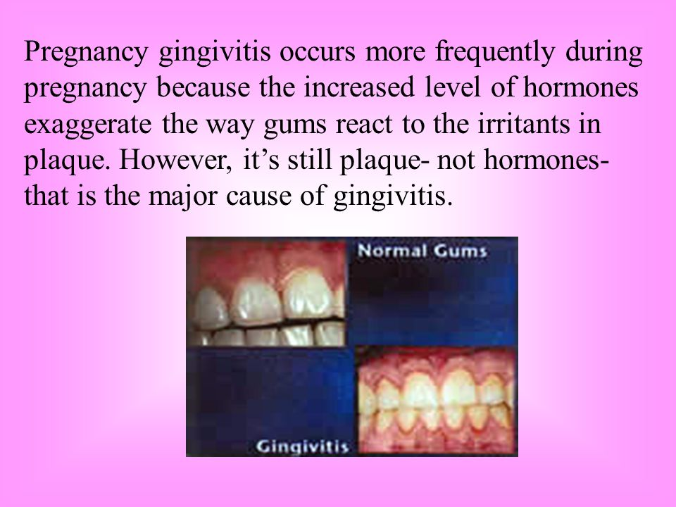 Pregnancy gingivitis occurs more frequently during pregnancy because the increased level of hormones exaggerate the way gums react to the irritants in plaque.