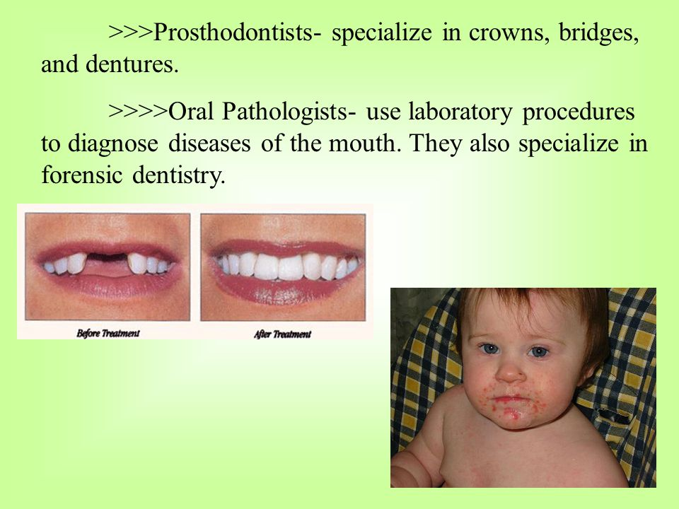 >>>Prosthodontists- specialize in crowns, bridges, and dentures.