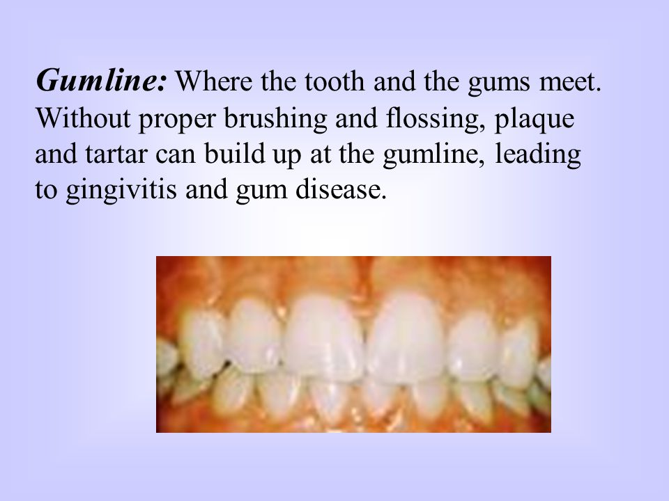 Gumline: Where the tooth and the gums meet