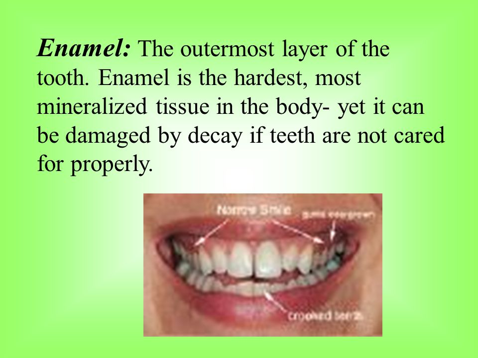 Enamel: The outermost layer of the tooth