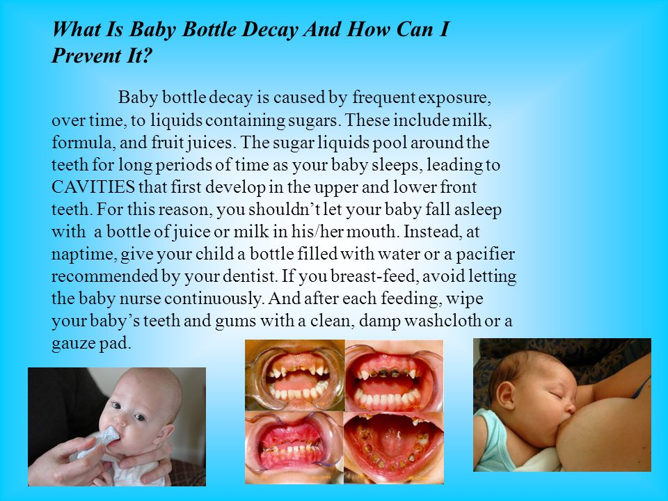 What Is Baby Bottle Decay And How Can I Prevent It