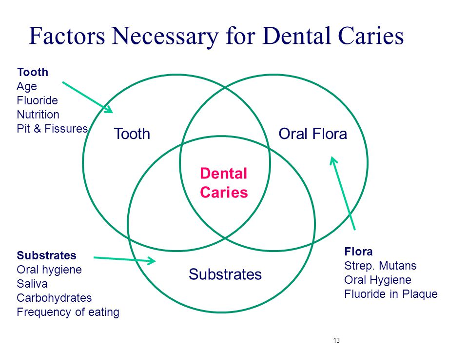 Factors Necessary for Dental Caries