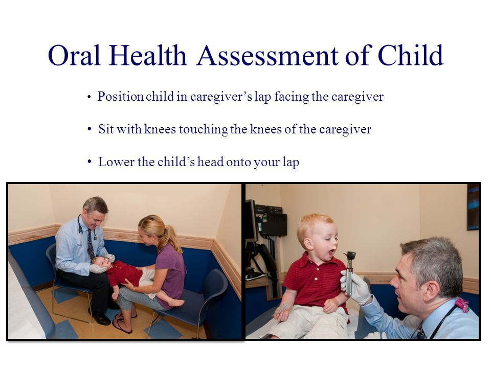 Oral Health Assessment of Child