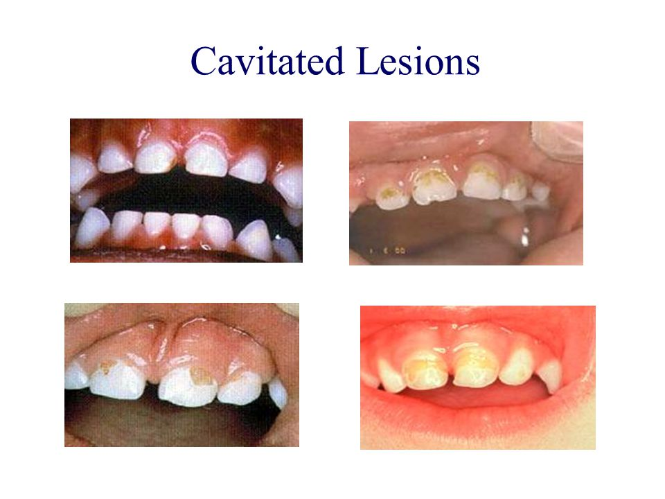 Cavitated Lesions
