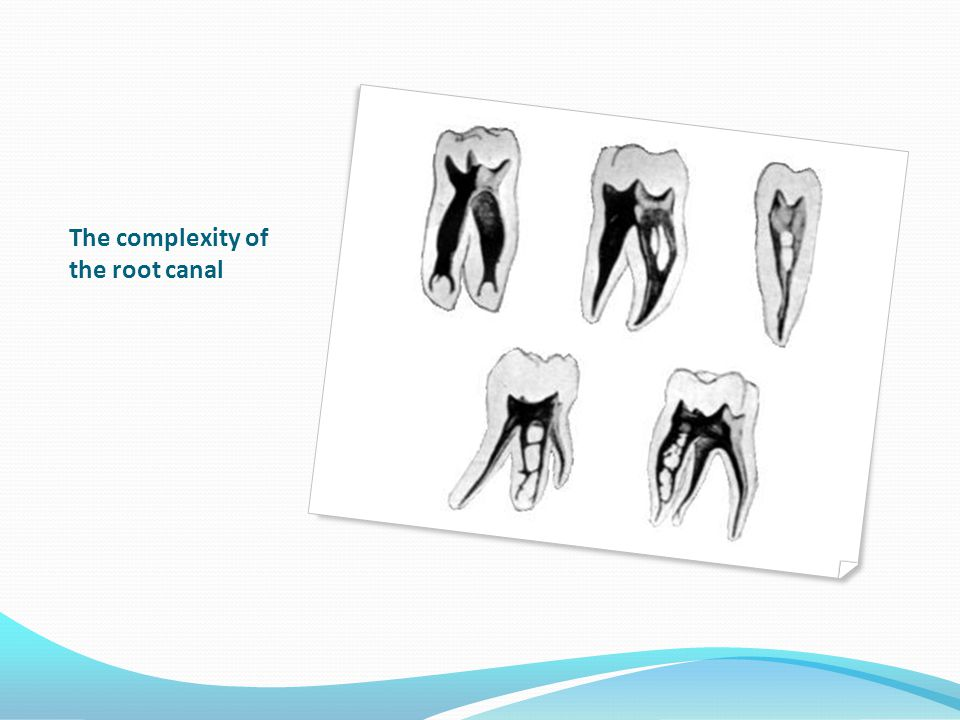 The complexity of the root canal