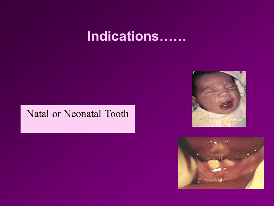 Natal or Neonatal Tooth