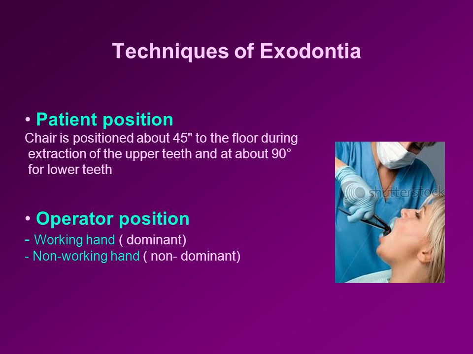 Techniques of Exodontia