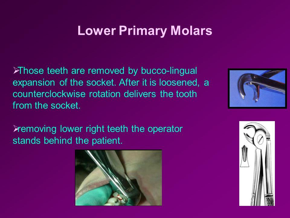 Lower Primary Molars