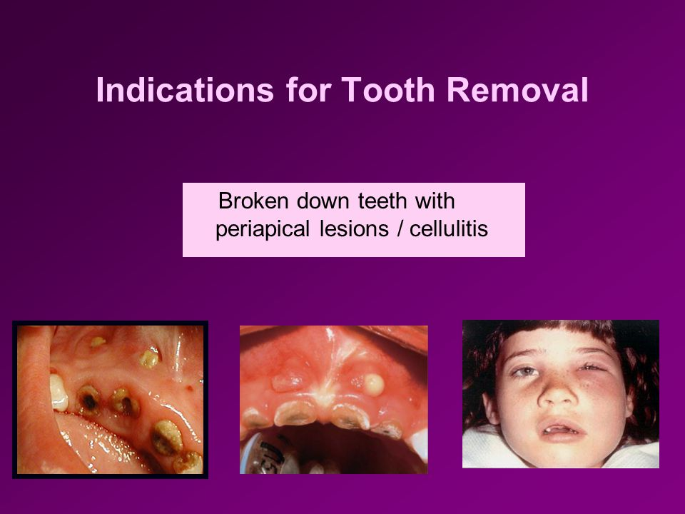 Indications for Tooth Removal