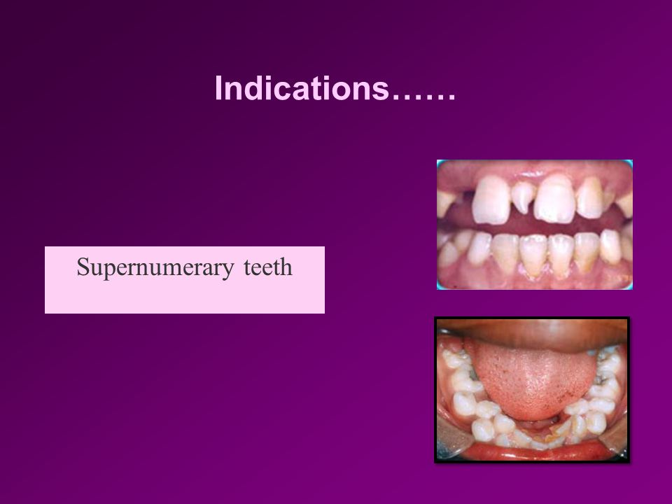 Indications…… Supernumerary teeth
