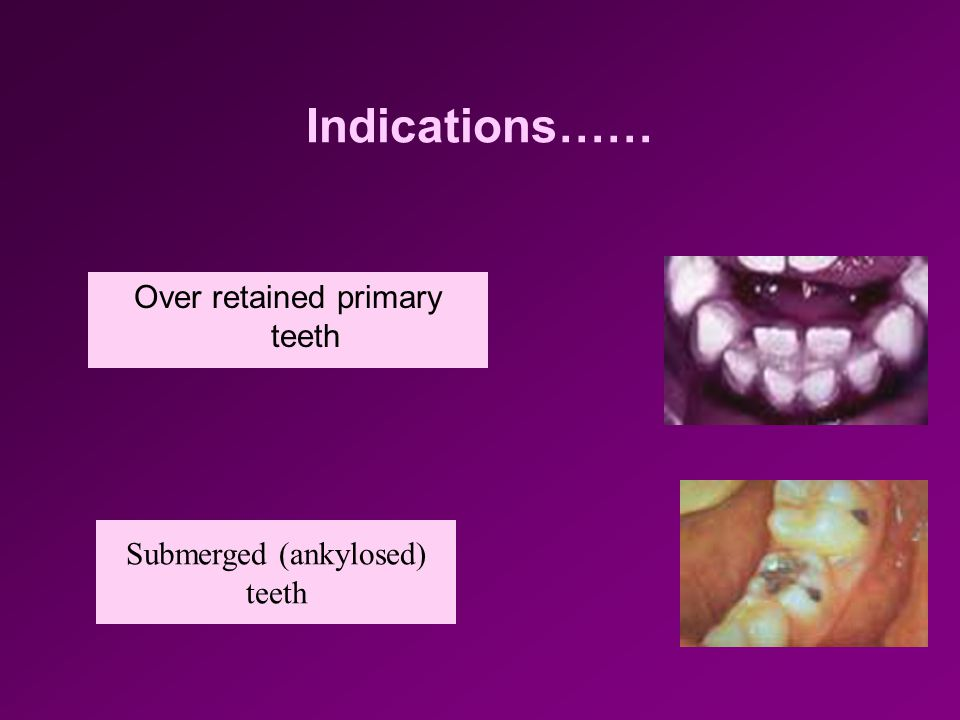 Indications…… Over retained primary teeth Submerged (ankylosed) teeth