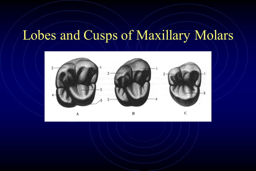 Lobes and Cusps of Maxillary Molars
